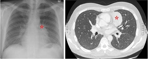Granulomatous-lymphocytic interstitial lung disease and