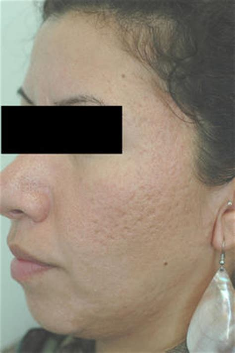Erbium Laser Resurfacing for Acne Scars photo from Harold