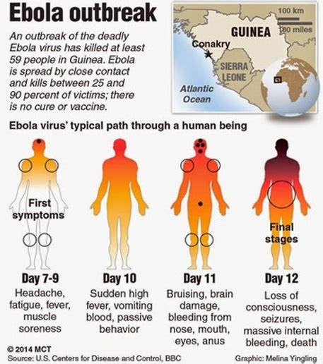 Ebola 2014 - GEOGRAPHY FOR 2020 & BEYOND