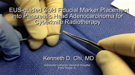 EUS guided Fiducial Marker Placement into Pancreatic head