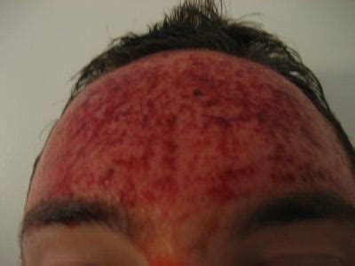Fraxel Re:Pair for Acne Scarring (Forehead Only) - Fraxel