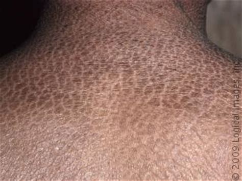 Papulosquamous and Inflammatory Dermatoses - Physician